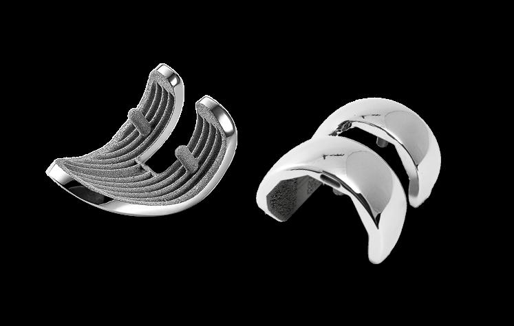 Knee Prosthesis made in titanium powder metal additive manufacturing